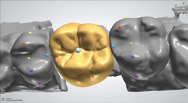 CAD Scanners and Design Software   Inside Dental Technology