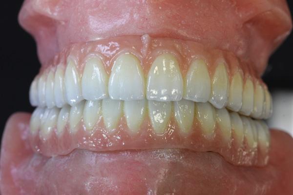 Scanning Hardware and Software Trends | Inside Dental Technology