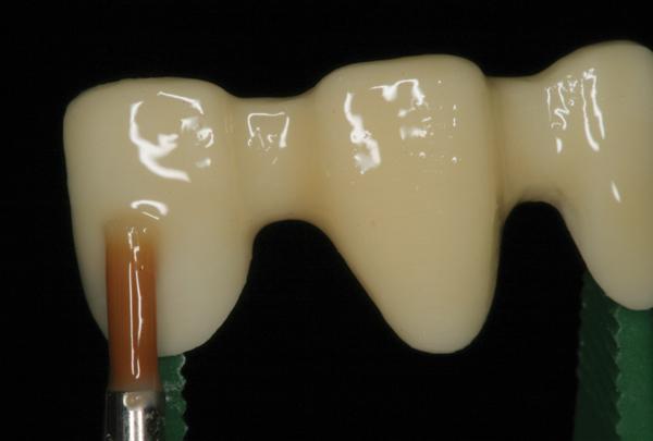 Classifying Dental Ceramics: Numerous Materials and