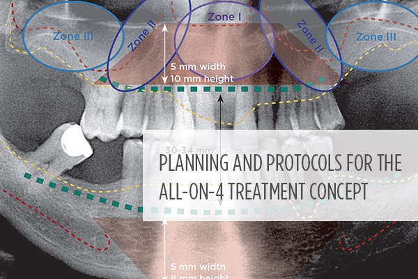 <p> 	Learn specific planning and treatment protocols to improve the durability and esthetics of the provisional restoration; optimize patient comfort; and increase clinical implementation. #dentalCE from <strong>Compendium</strong></p>