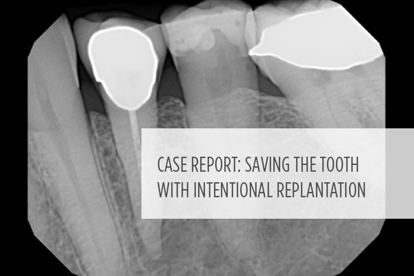 <p> 	Does intentional replantation work? Allen Ali Nasseh, DDS, MMSc, explains how this alternative option may still save teeth in rare cases when conventional surgery is impossible. </p>