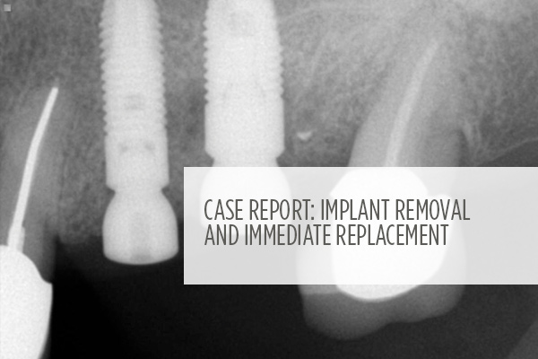 <p> 	Case report showing how a fractured implant and adjacent fractured tooth were removed and replaced with two root-formed implants in one surgical procedure. </p>