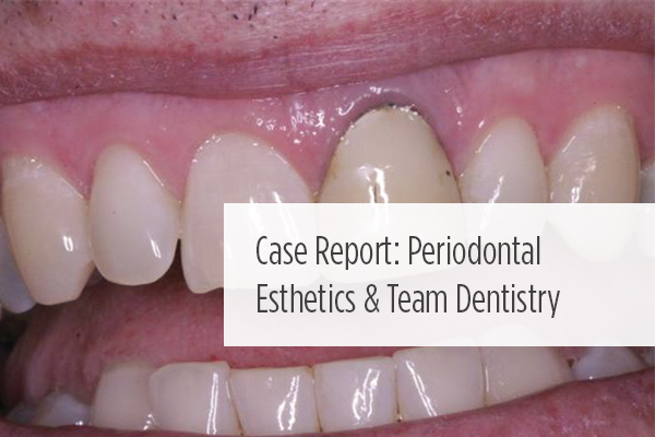<p> 	A case of periodontal care that not only enhanced the esthetic appearance of a maxillary central incisor, but also strengthened its periodontal support. </p>