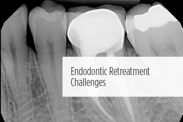 <p> 	Endodontic retreatment retreatment is less invasive, less expensive, and less time consuming than the implant alternative. What factors should you consider in your retreatment plan?</p>