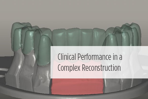 <p> 	New #<strong>Compendium</strong> case explores the issues of treating a complex maxillary and mandibular fixed, implant-supported reconstruction. </p>