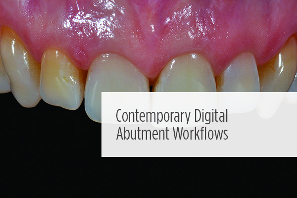 <p> 	This #CE case shows collaborative strategies to digitally design and fabricate a patient-specific custom abutment to maximize mucosal form, prosthesis design, and esthetics.</p>