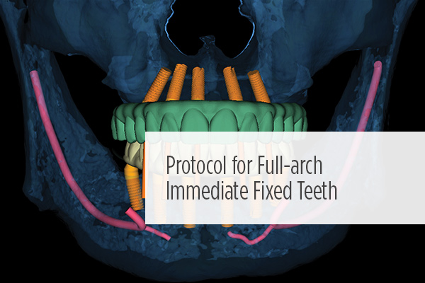 <p> 	A guided full-arch immediate-function implant treatment modality that includes placement of a prefabricated, bar-supported, PMMA prosthesis.  #technology #CE</p>
