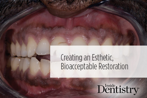 <p> 	These treatment outcomes exceeded the patient's expectations in creating an esthetic, bio-acceptable restoration. A new #InsideImplants article by Emil Hawary, DDS, FAACD, FAGD, DICOI.</p>