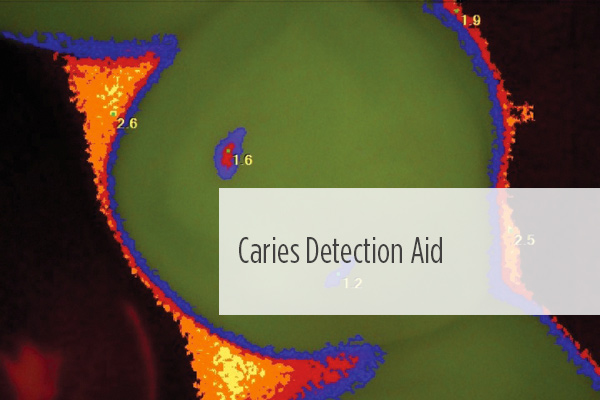 "<p> 	<span style=""background-color:#ffffff;"">This discussion explores the rationale behind the use of a caries detection aid, the materials currently available, and a case presentation where a caries detection device is used in the treatment of caries in a teenage patient.</span></p>"