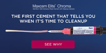 See why Maxcem Elite Chroma is preferred.