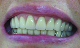 How do biomechanic principles apply to removable partial dentures?