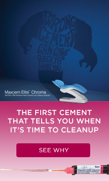 The first cement that tells you when it's time to cleanup