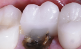 Learn more about risk assessment criteria or tooth preservation!