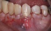 Learn more about the results of a double-layer acellular dermal matrix after five years!