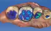 Learn how digital restorative dentistry can minimize risk and lead to predictable outcomes.