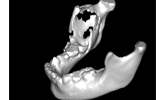 Learn more about how CBCT is changing oral and maxillofacial surgery!