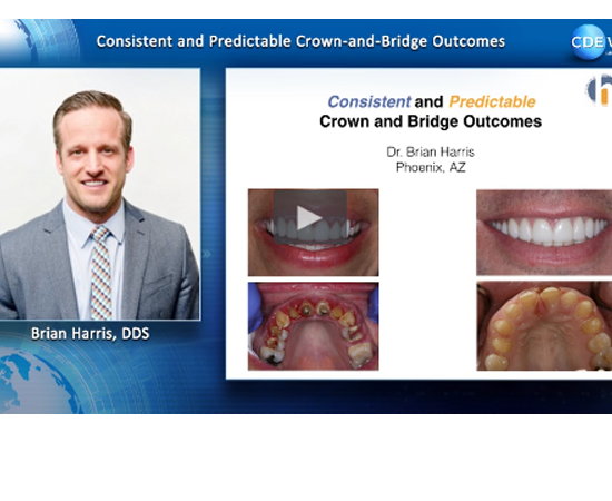 Learn more about creating optimal and consistent crown and bridge restorations!