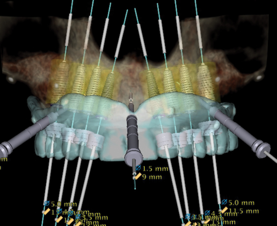 Learn more about CBCT and its impact on oral surgery!