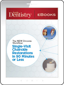 The New Zirconia Workflow: Single-Visit Chairside Restorations in 90 Minutes or Less
