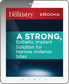A Strong, Esthetic Implant Solution for Narrow Anterior Sites