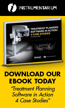 eBook: Treatment Planning Software in Action 4 Case Studies