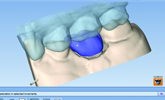 Learn how digital dentistry, digital impressioning, and new workflows can improve your lab!