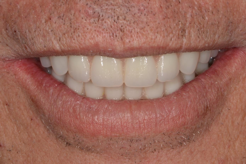 Full-Mouth Implant Rehabilitation With Monolithic Zirconia