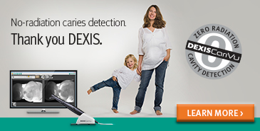No-radiation caries detection, thanks to Dexis!