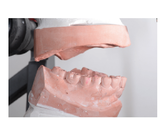 Special attention should be paid to designing occlusal schemes. Learn more in this CE!