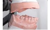 Learn more about the importance of occlusal stability!