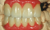 Technology and the telescopic denture solution offers the best results!
