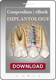 Decision Making in Implantology