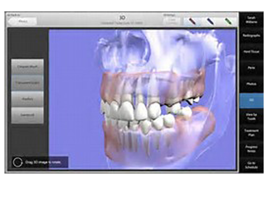 Learn more about digital integration in dentistry.