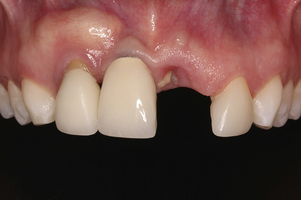 Management of a Malpositioned Implant in the Anterior