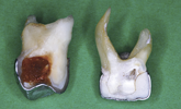 Authors explore the Hall Technique with pediatric caries lesions.