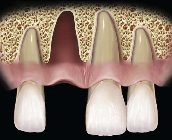 Learn more about how to classify extraction sockets - Periodontics!