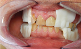 Learn more about Pala Dentures and their usefulness in this case presentation!