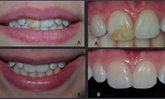 Learn more about which factors affect composite restorations!