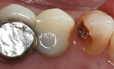 Learn more about ceramic bridges and how they offer great patient experiences!
