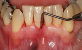 Learn more about options when treating advanced periodontal lesions!