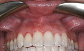 Learn how lip repositioning can eliminate a gummy smile!