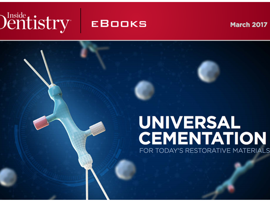 Learn more about the benefits and challenges of universal cementation!