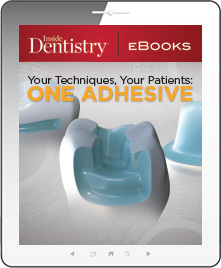 Your Techniques, Your Patients: One Adhesive