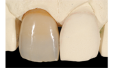Learn more about the clinical considerations for nonvital teeth.