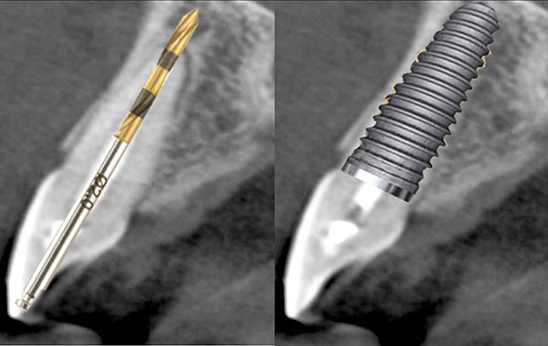 Surgical And Prosthetic Considerations With Immediate Implant Placement Compendium