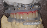 Learn more about improvements in implant treatment outcomes due to digital technology.
