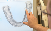 Learn more about the Invisalign Outcome Simulator and how it can help with presenting treatment options!