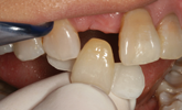Learn more about providing an great esthetic anterior implant!