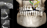 Learn more about how CAD/CAM has impacted the dental space!