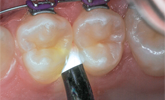 Learn more about caries prevention and the delivery of flouride solutions to proximal tooth surfaces!